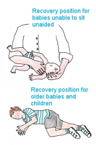 First aid recovery positions for unconscious babies and  children