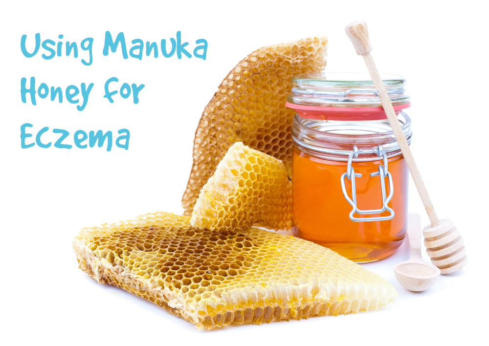 Is Manuka honey good for eczema? Alternative remedies #3