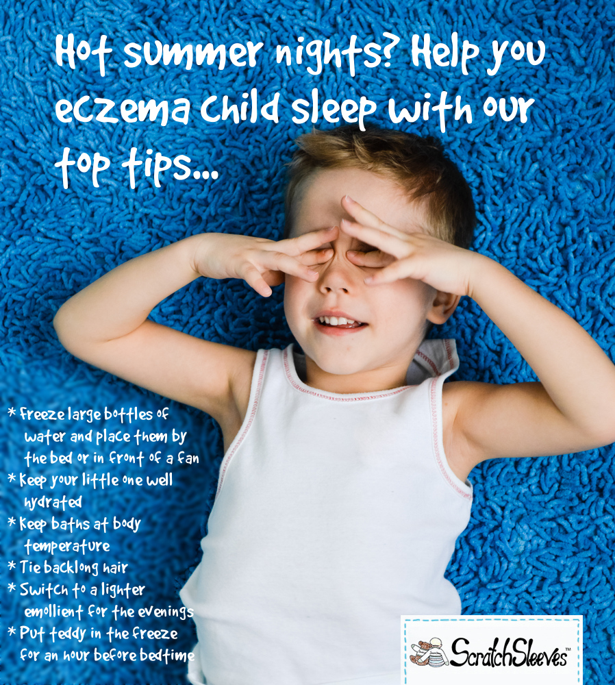 Hot summer nights? Help your eczema child to sleep with our top tips...