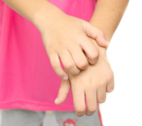 The Eczema Itch Explained – What Causes It? What relieves it?